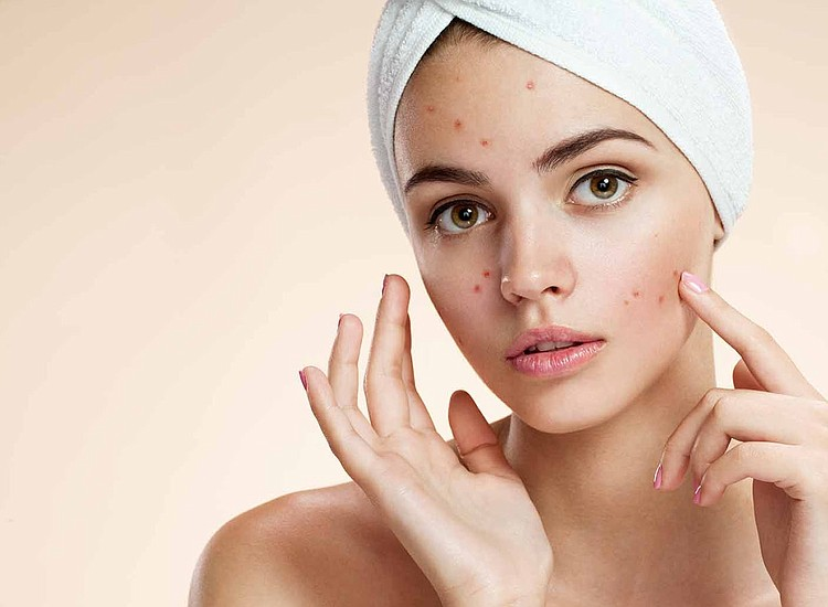 Eliminate Scars, Keloids and Acne